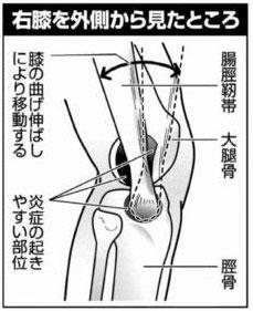 膝の絵-thumb-250x306-2489